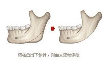 下颌角整形多久可以看到效果