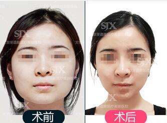 下颌角整形手术面部会下垂吗
