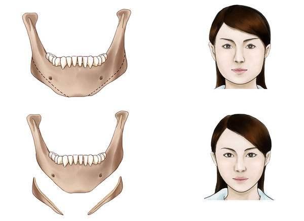 下颌角整形面部会下垂吗