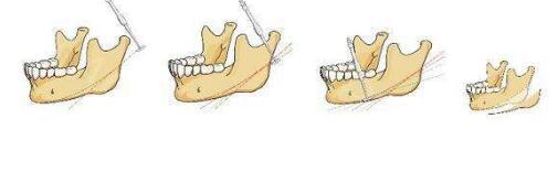 下颌角手术价格
