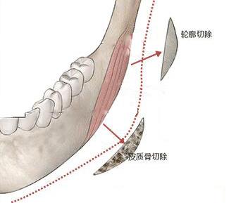 男性能做下颌角整形术吗