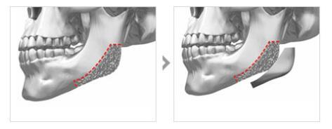 下颌角整形的注意事项